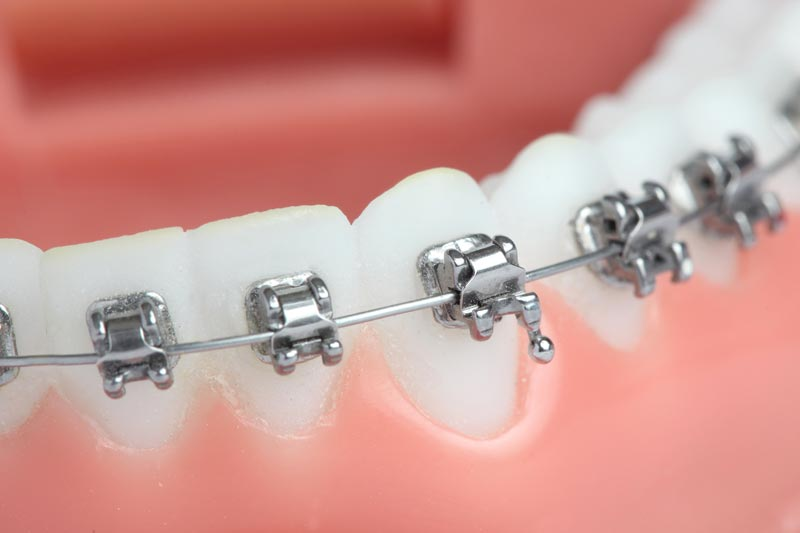 bracket ortodontia curitiba